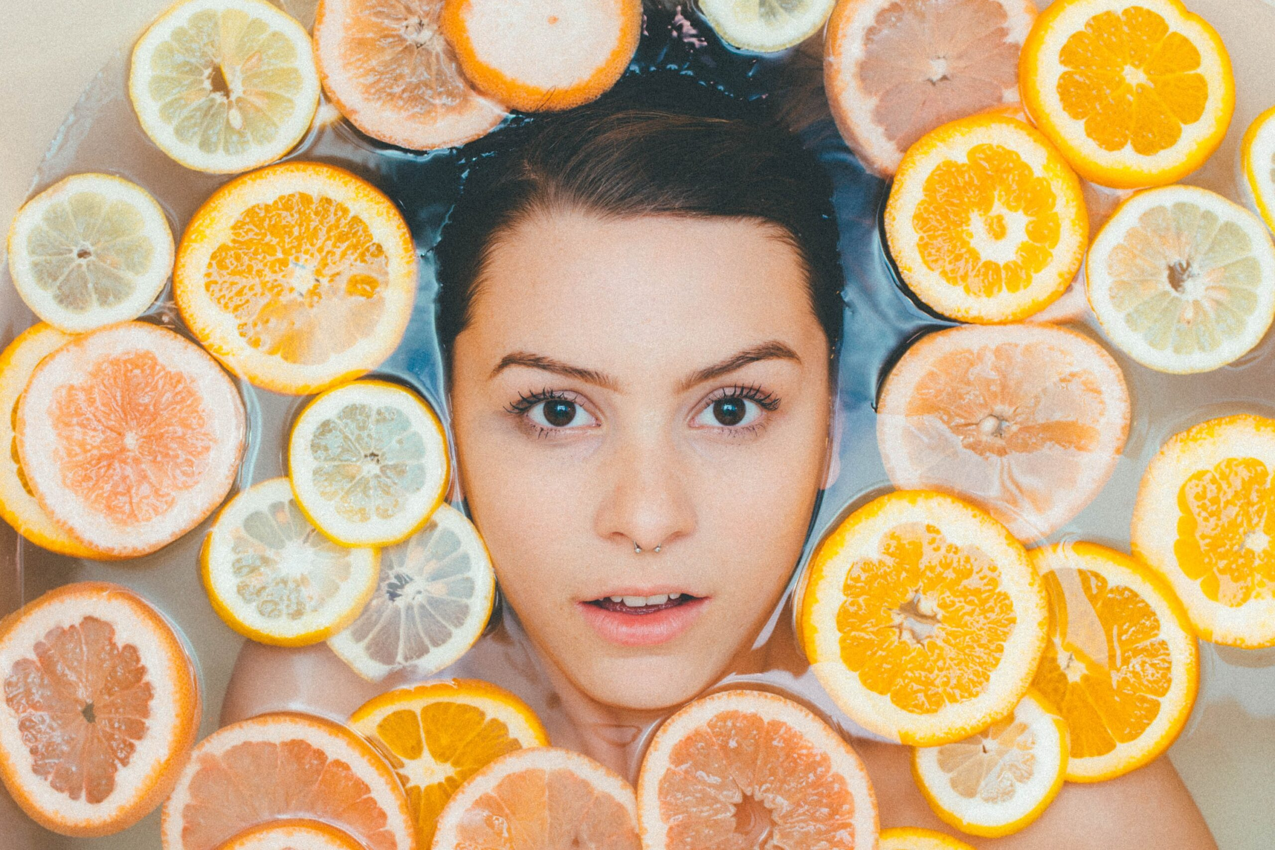 Periorbital dark circles can be a sign of iron deficiency ...